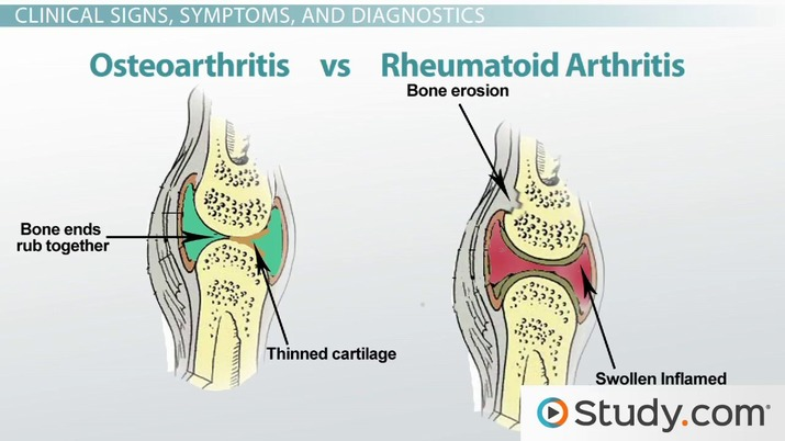 What Is Rheumatoid Arthritis Causes Symptoms Treatment Video Lesson Transcript Study Com