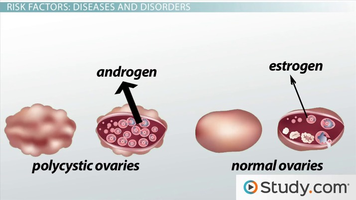 Endometrial cancer from pcos - p5net.ro - Endometrial cancer from pcos