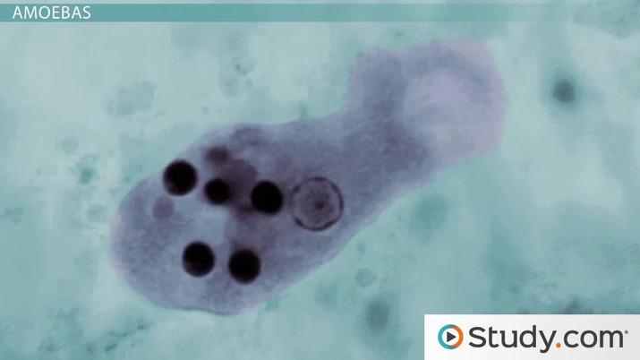What are Protozoa? - Definition, Characteristics & Examples