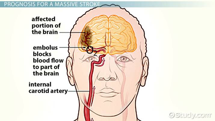 Massive Stroke: Recovery Timeline & Prognosis - Video