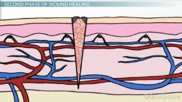 The Three Phases of Wound Healing