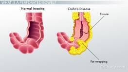 Perforated Bowels Causes Symptoms Treatment Video Lesson Transcript Study Com