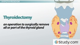 Thyroid Disorders: Hyperthyroidism, Hypothyroidism & Thyroidectomy