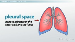 What Is Tachypnea? - Definition, Causes & Treatment - Video