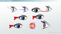 Cataracts, Lenses & Laser Eye Treatment Vocabulary