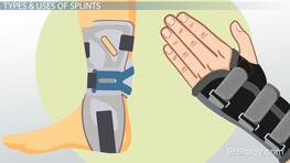 Splints in Occupational Therapy: Types & Uses