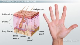What Is Skin Abrasion? - Definition & Treatment