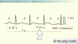 Heart Block: Different Types and Treatment