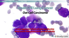 Lung Cancer: Causes, Signs & Treatments