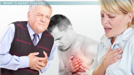 Why Heart Disease is a Complex Human Disease