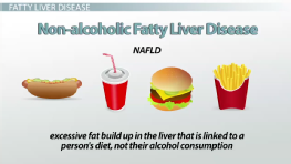 Fatty Liver Disease & Dietary Interventions