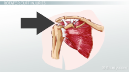 Myofascial Pain Syndrome & Rotator Cuff Vocabulary
