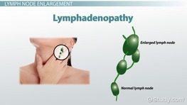 Vocabulary for Major Pathology & Diagnostics of the Lymphatic System