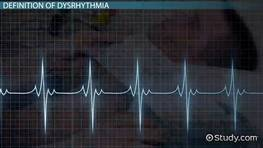 What Is Dysrhythmia? - Definition, Symptoms & Treatment