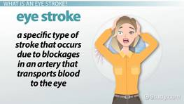 Eye Stroke: Treatment & Recovery