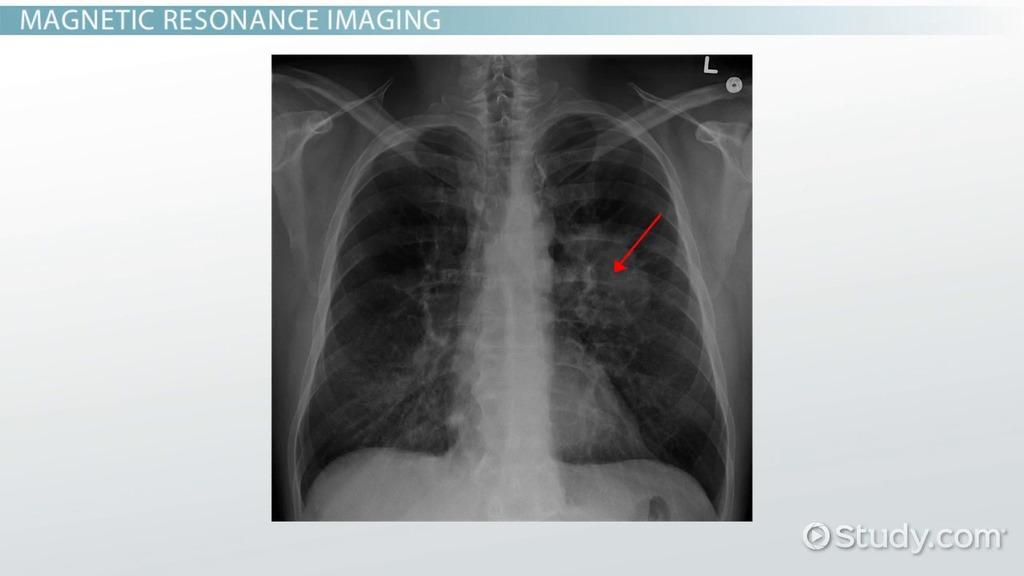 Vocabulary Of Ct Mri Pet Imaging Video Lesson Transcript