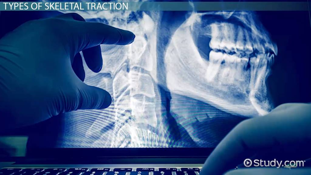 Skeletal Traction: Types & Complications - Video & Lesson Transcript ...