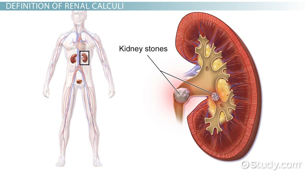 What Are Renal Calculi? - Definition, Causes, Symptoms & Treatment ...