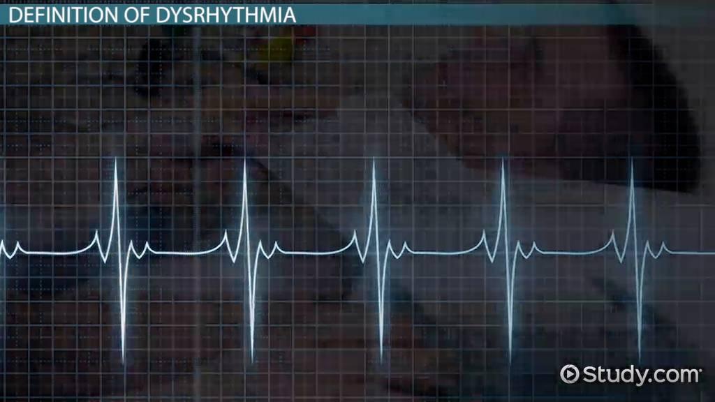 What Is Dysrhythmia Definition Symptoms Treatment Video