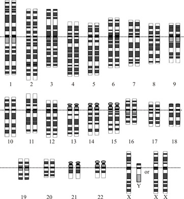 Printables Chromosome Worksheet y chromosome definition disorders structure study com genes on the chromosome
