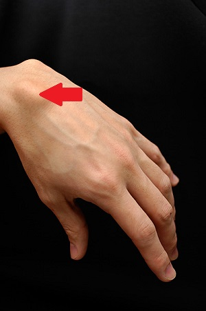 what is a ganglion cyst? - definition, causes, symptoms, Human Body