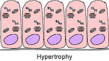 Hypertrophied Cells