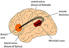conduction aphasia: definition & treatment | study, Skeleton