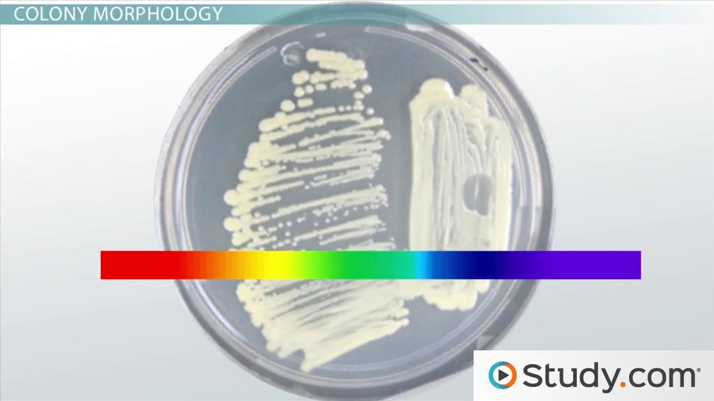 bacterial colony  morphology  characteristics  u0026 definition