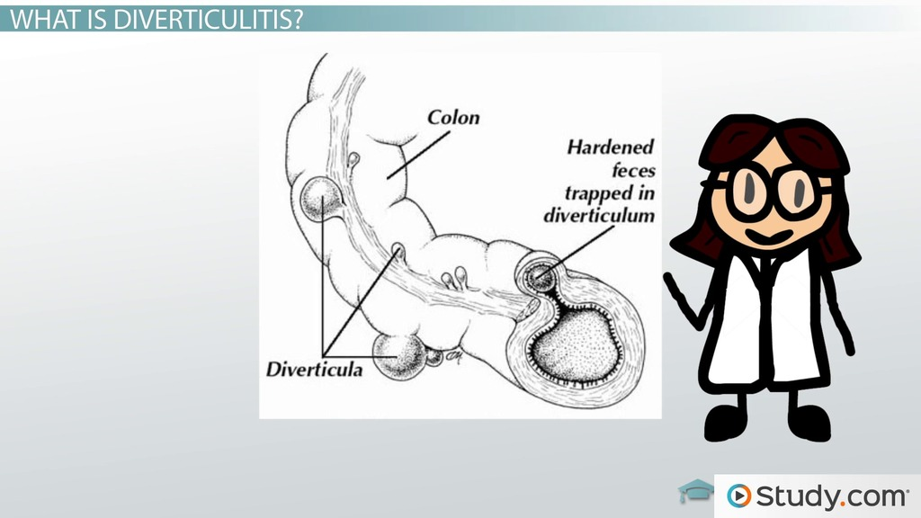 Diverticulitis Cause Signs Amp Treatments Video Amp Lesson