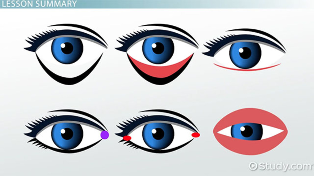 Eyelid Pathologies: Medical Vocabulary - Video & Lesson Transcript ...