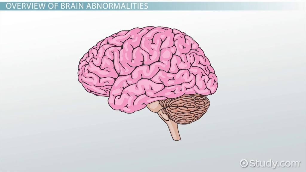 Brain Abnormalities: Causes & Symptoms - Video & Lesson Transcript ...