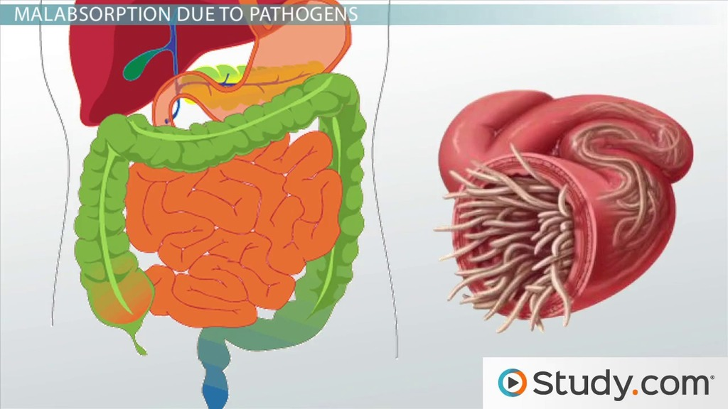 Malabsorption in the GI Tract - Video & Lesson Transcript | Study.com