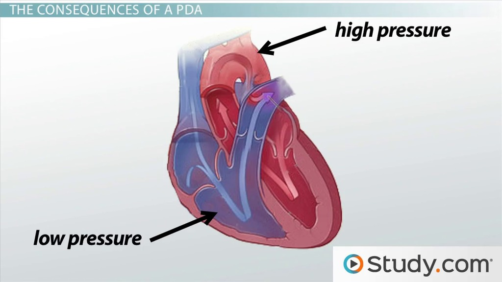 Patent Ductus Arteriosus: Causes, Signs, and Treatment - Video ...