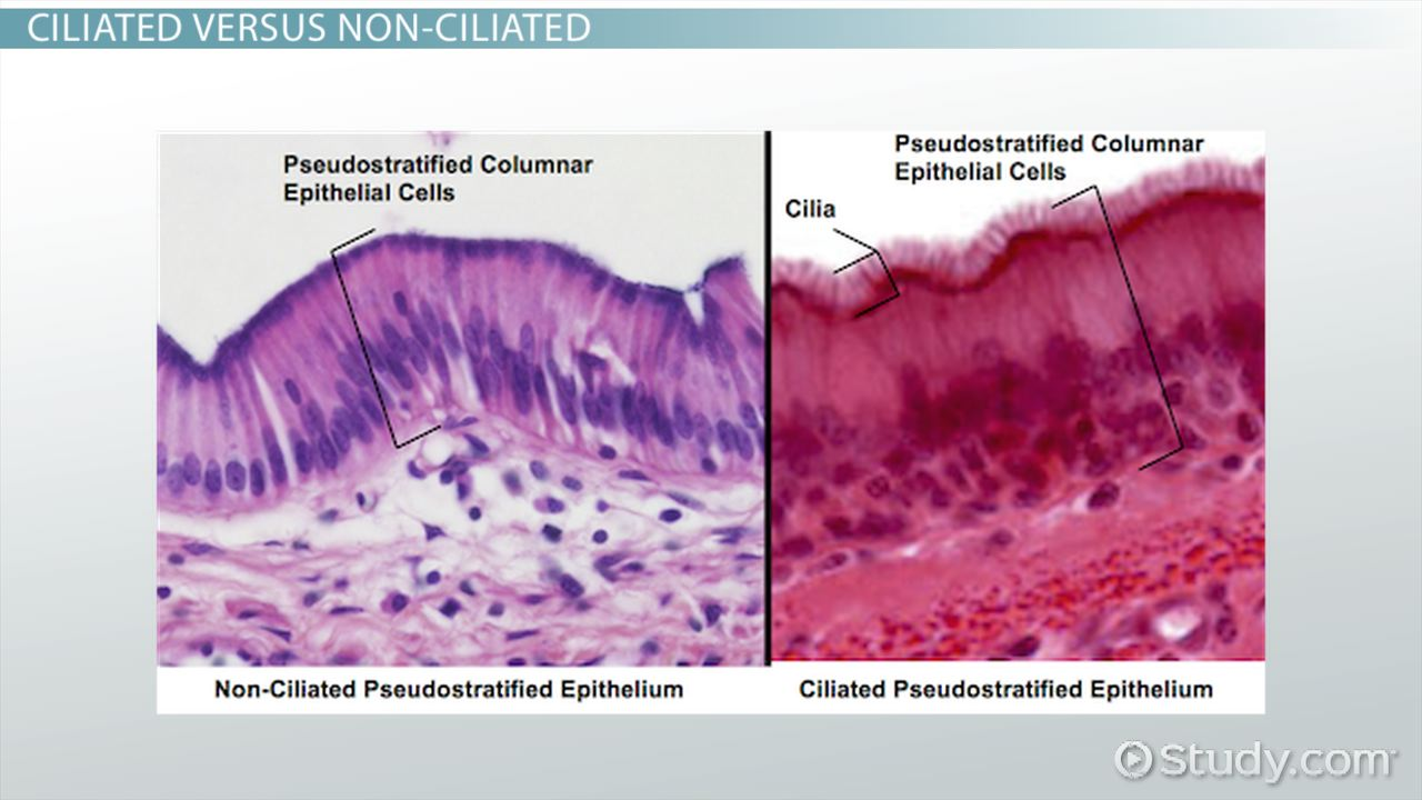 Pseudostratified ciliated columnar epithelium labeled