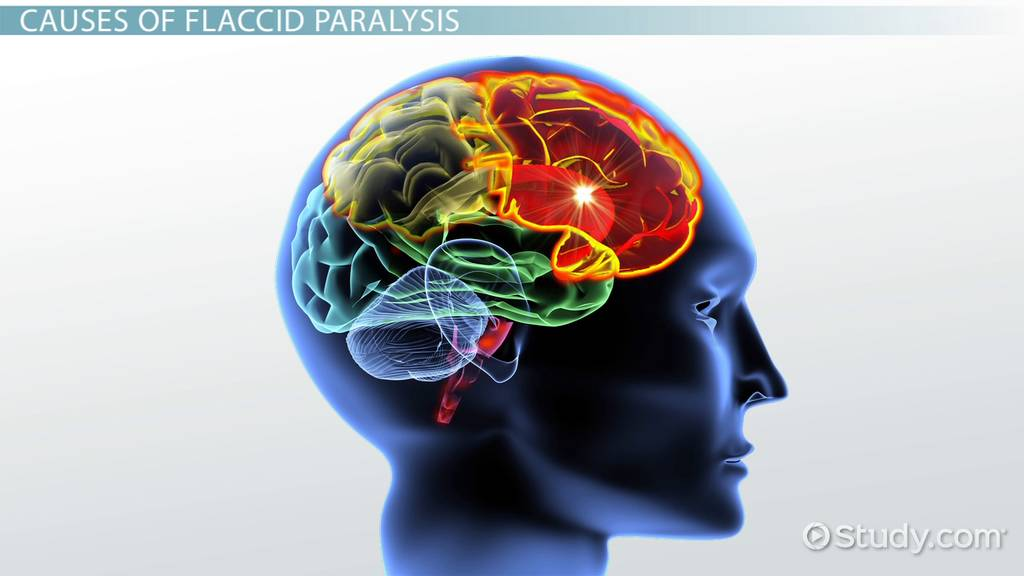 flaccid paralysis  definition  symptoms  u0026 causes