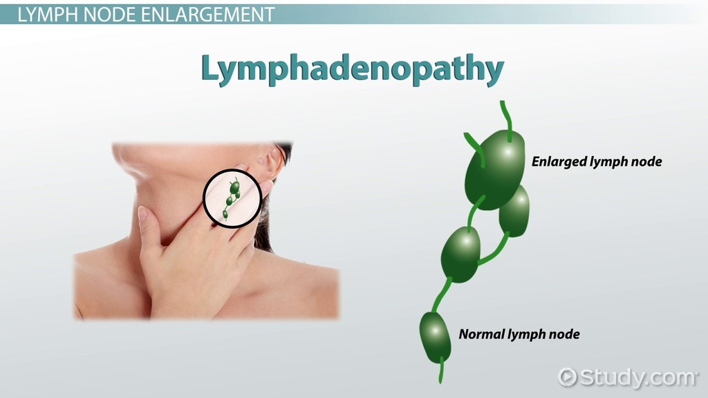 Image result for lymphatic  system vocabulary