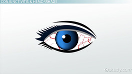 Pathologies of Structures Related to the Eye: Vocabulary