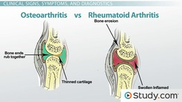 What is Rheumatoid Arthritis? - Causes, Symptoms & Treatment