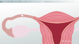 What Is a Fallopian Tube? - Function, Obstruction & Definition