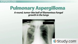 What is Aspergillosis? - Fungal Infections & Symptoms