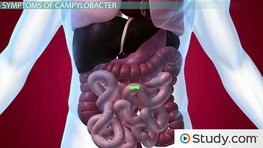 What Is Campylobacter? - Infection Caused By Campylobacter Bacteria