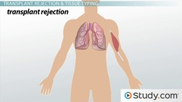 Transfusion and Transplant Reactions