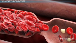 What Is Thrombosis? - Definition, Symptoms & Treatment