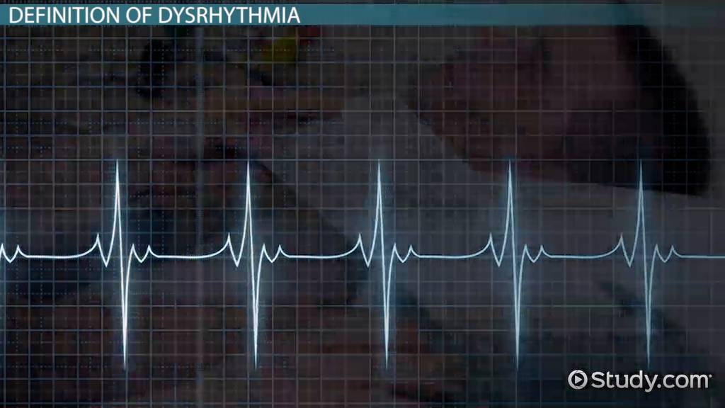 what is dysrhythmia